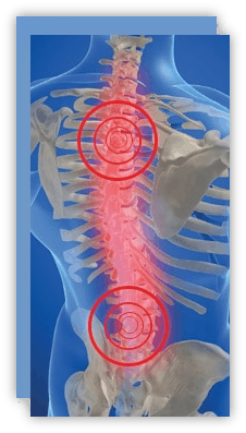 Salyer Chiropractic with spinal decompression you only stretch the spine
